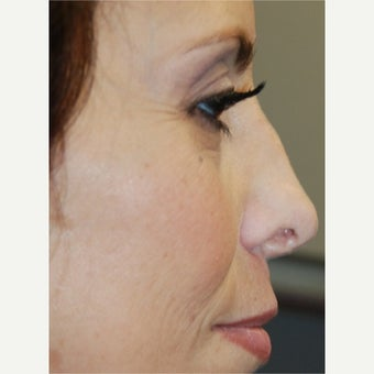 45-54 year old woman treated with Silikon 1000 for correction of nasal irregularities after trauma.