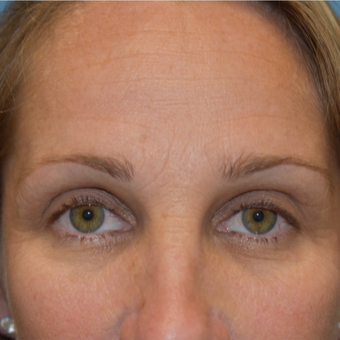 45-54 year old woman treated with Brow Lift