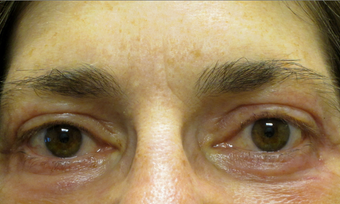 55 year old woman treated for droopy eyelid and eyelid bags after 853588