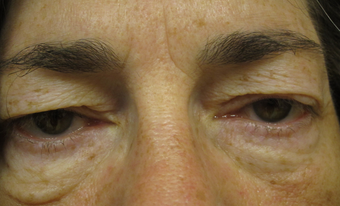 55 year old woman treated for droopy eyelid and eyelid bags before 853588