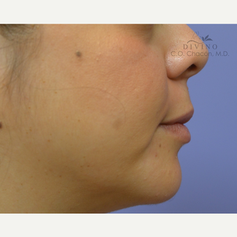 25-34 year old woman treated with Lip Augmentation after 3421896