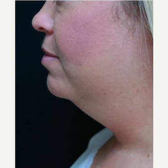 25-34 year old woman treated with 1 CoolSculpting treatment before 3252920