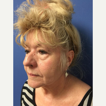 65-74 year old woman treated with Eyelid Surgery before 3684552