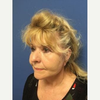 65-74 year old woman treated with Eyelid Surgery after 3684552