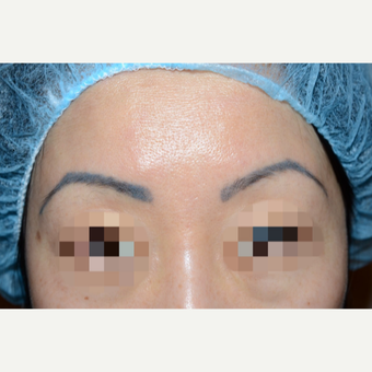 Woman treated with Eyebrow Transplant before 3089233
