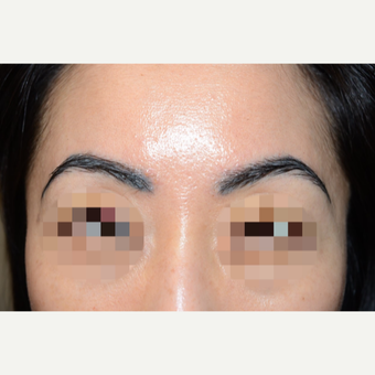 Woman treated with Eyebrow Transplant after 3089233