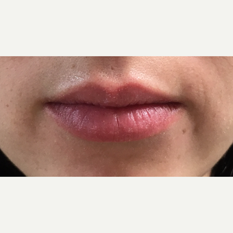 Lip Enhancement with Juvederm before 3788717