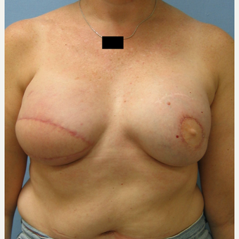 Breast Reconstruction with Latissimus Flap for this 55 Year Old Woman after 3088929