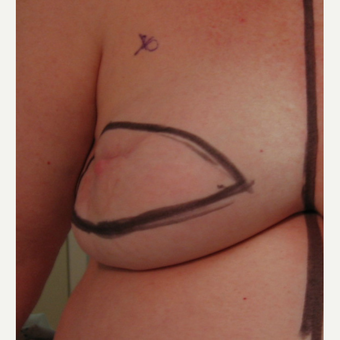 Breast Reconstruction with Latissimus Flap for this 55 Year Old Woman before 3088929