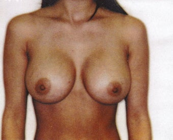 32 Year Old Female - Breast Augmentation after 1489221