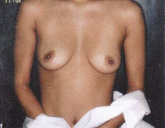 32 Year Old Female - Breast Augmentation before 1489221