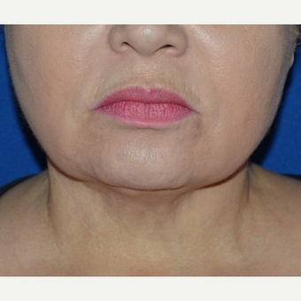 45-54 year old woman treated with Chin Liposuction after 3641421