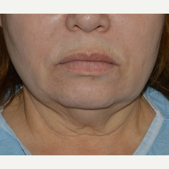 45-54 year old woman treated with Chin Liposuction before 3641421