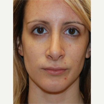 29 y.o. woman treated with Silikon 1000 for permanent non-surgical rhinoplasty and lip augmentation.