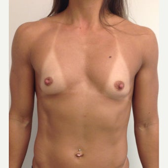 Breast Augmentation before 1652534