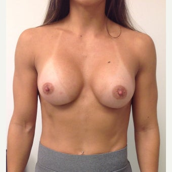 Breast Augmentation after 1652534