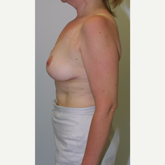 35-44 year old woman treated with Breast Reduction after 3512674