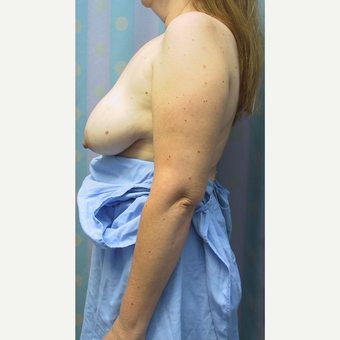 35-44 year old woman treated with Breast Reduction before 3512674