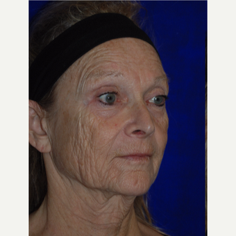 Female treated with Laser Resurfacing before 3744342