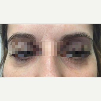 35-44 year old woman treated with Eye Bags Treatment before 3786893