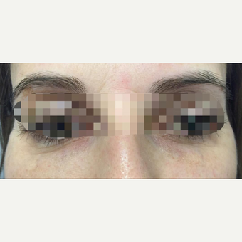 35-44 year old woman treated with Eye Bags Treatment after 3786893