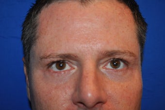 44 Year Old Male Lower Blepharoplasty to Eliminate Puffy Under-Eye Bags after 894603