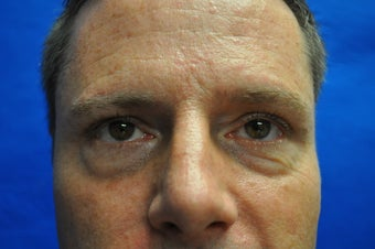 44 Year Old Male Lower Blepharoplasty to Eliminate Puffy Under-Eye Bags before 894603