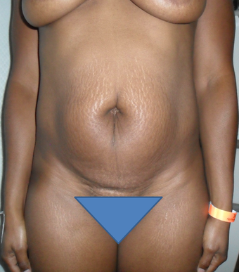 Tummy Tuck before 1184500