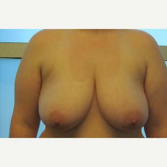Breast Reduction before 3136778