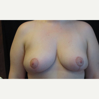 Breast Reduction after 3136778