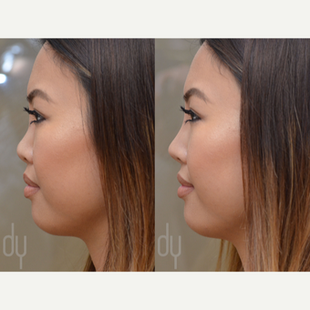 Non Surgical Rhinoplasty before 3322518