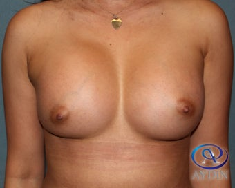 35-44 year old woman treated with Breast Augmentation after 3253577