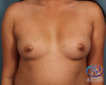 35-44 year old woman treated with Breast Augmentation before 3253577