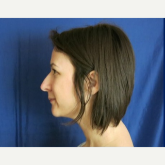 18-24 year old woman treated with Rhinoplasty before 3574962