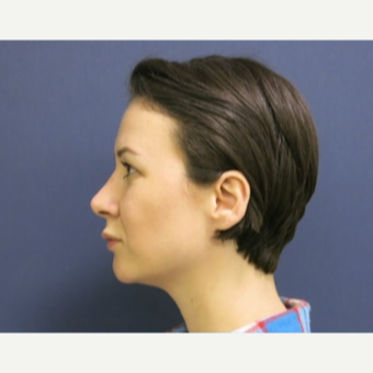 18-24 year old woman treated with Rhinoplasty after 3574962