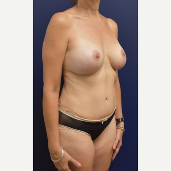 45-54 year old woman treated with Mommy Makeover after 3294067