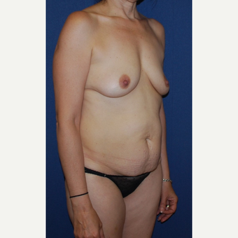 45-54 year old woman treated with Mommy Makeover before 3294067