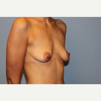 25-34 year old woman treated with Breast Augmentation before 3569842