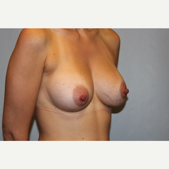 25-34 year old woman treated with Breast Augmentation after 3569842