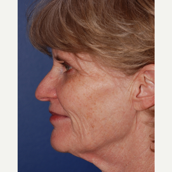55-64 year old woman treated with Facelift before 3625211