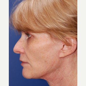 55-64 year old woman treated with Facelift after 3625211