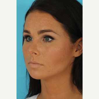 25-34 year old woman treated with Rhinoplasty after 3629205