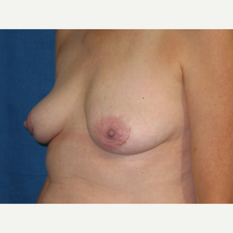 Breast Implant Removal surgery following an augmentation performed 18 years prior after 3417863