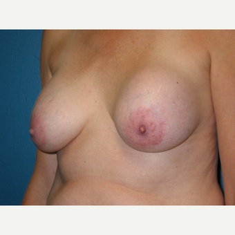 Breast Implant Removal surgery following an augmentation performed 18 years prior before 3417863