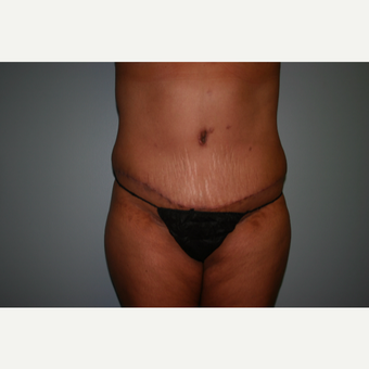 45-54 year old woman treated with Tummy Tuck after 3339408