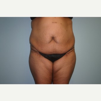 45-54 year old woman treated with Tummy Tuck before 3339408
