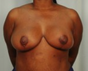 Breast Reduction - DD to D- after 1506142