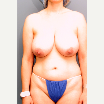 18-24 year old woman treated with Breast Reduction before 3475610