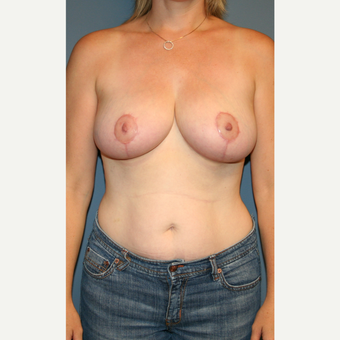 18-24 year old woman treated with Breast Reduction after 3475610