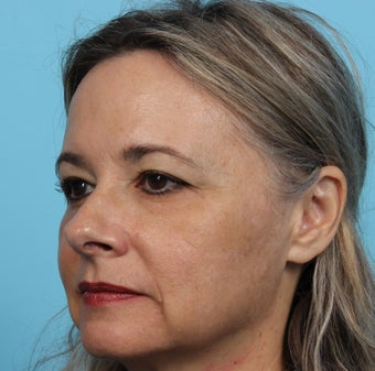 45-54 year old woman treated with Voluma Cheek Augmentation